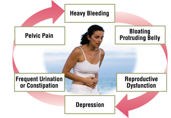 fibroids-cause-bleeding