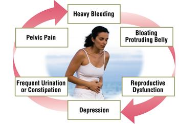 fibroids-cause-bleeding